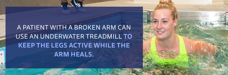 graphic of a female running in a pool with the quote A patient with a broken arm can use an underwater treadmill to keep the legs active while the arm heals